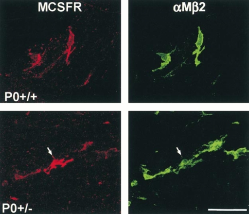Cellular localization of the M-CSF receptor (MCSFR, red) immunoreactivity in teased fiber preparations from ventral roots of P0+/+ and P0+/− mice using antibodies to αMβ2 integrin (green) as a marker for peripheral nerve macrophages. αMβ2-negative cells, such as the adjacent Schwann cells, were never labeled. Note the particularly strongly MCSFR-immunoreactive macrophage in the P0+/− mutant (arrow). Bar, 50 μm.