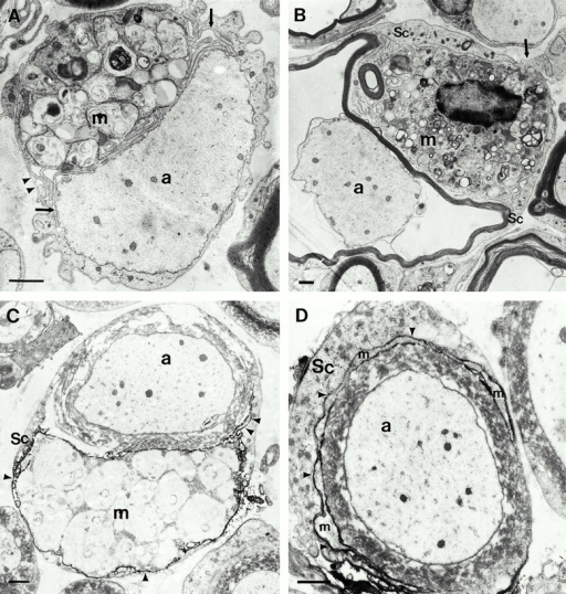 Conventional electron microscopy (A and B) and immunoelectron microscopy using the macrophage-specific antibody F4/80 (C and D) in quadriceps nerves of 6-mo-old P0+/− mice. (A) A putative macrophage (m) that is laden with myelin debris is closely apposed to a demyelinated axon (a). Note the slender processes of the macrophage (arrows) and the position of the cell within the endoneurial tube. The arrowheads demarcate the Schwann cell basal lamina. (B) A putative macrophage (m) is in close contact to a thin myelin sheath that is partially detached from the corresponding axon (a). The arrow demarcates a process of the putative macrophage that penetrates the Schwann cell basal lamina. Sc, Schwann cell. (C) An F4/80-positive macrophage (m) containing myelin debris is in close apposition to a myelin sheath. Arrowheads indicate electron-dense immunoreaction product. a, Axon; Sc, Schwann cell. (D) A slender process of a F4/80-positive macrophage (m) has penetrated in between the pericaryon of the Schwann cell (Sc) and its normal appearing myelin sheath. Arrowheads indicate electron-dense immunoreaction product. a, axon. Bars, 1.5 μm.