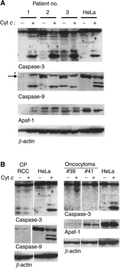 Examples of expression and processing of components of the apoptosome in clinical samples from RCC. Cells were isolated and extracts were prepared from fresh explants of clear cell RCC (A) or from one chromophobe RCC and two oncocytomas (B). Extracts from HeLa cells were prepared as above. Extracts (800 μg protein in 40 μl) were incubated for 1 h at 37°C in the presence or absence of 50 μg ml−1 cytochrome c. A measure of 200 μg per lane were run on SDS–PAGE and proteins were detected by Western blotting. Purity of the chromophobe RCC was about 80% tumour cells, suggesting that a contamination of 20% nontumour cells does not distort the results. (A) Asterisk denotes a nonspecific band, arrow procaspase-9. The several bands recognised by the anti-Apaf-1 antibody were seen in several experiments and may constitute Apaf-1 variants or, at least in part, products of nonspecific degradation. The smaller size band in the lane patient #3, no cytochrome c in the caspase-9 blot is of unknown origin and was not see in any other blot.