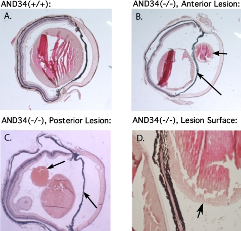 Paraffin-embedded histopathology of AND-34−/− mouse eyes. Paraffin tissue sections of four-month-old AND-34−/− eyes are compared with a four-month-old AND-34+/+ eye. Panel B shows a fragment of anterior chamber lens cortex (short arrow) in front of the iris (long arrow). Panel C shows a fragment of lens cortex (short arrow) behind the iris (long arrow). Panel D shows that the fragment of lens cortex lacks both epithelial cells and a lens capsule. The lens capsule is visible in the lens itself on the left side of this panel. In panels A and B, the loss of lens fiber material from the lens is due to artifactual shearing during the cutting of the paraffin section.