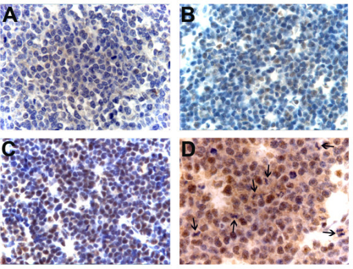 Representative examples of pRb2 staining in BL patients from Uganda. A) Negative staining (original magnification: ×400). B) Low staining, i.e. less than 50% of tumour cells expressing pRb2 (original magnification: ×400). C) High staining, i.e. more than 50% of tumour cells expressing pRb2 (original magnification: ×400) D) Cytoplasmic expression of pRb2 in tumour cells undergoing mitosis. Dividing cells are indicated by arrows (original magnification: ×630).