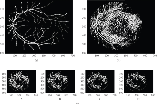 (a) Original fundus image with well traced major network and slightly distinct major peripheral network. (b) Original fundus image ellipse corrected. (c) Binary vessel wall map. (d) Vessel map based on VWP. (e) Retinal vasculature based on VWP and fine-segmented for local details. (f) Retinal vasculature without VWP map using MIP. (g) Estimated ground truth vessel vasculature. (h) Redundant vessel vasculature produced using an augmented VM and double-sided GS-MG. (i) 2nd vessel network: Successive maps taken using different features and different sensitivities (thresholds). (A) Gradient homogeneity VMs. (B) Paired VP map and dominant gradient VM. (C) Increased vessel width allowed, lower gradient threshold and interpolated WPs. (D) Experimentally proved VM.