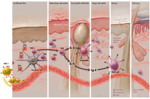 HIV-1-driven immunological changes in the skin. Graphic representation of the immunological processes involved in the pathogenesis of primary HIV-1 related skin disorders, highlighting the presentation of the virus by a dendritic cell to a CD4+ T lymphocyte and the subsequent changes in the cytokine profile that are brought by the death of Th1 cells.