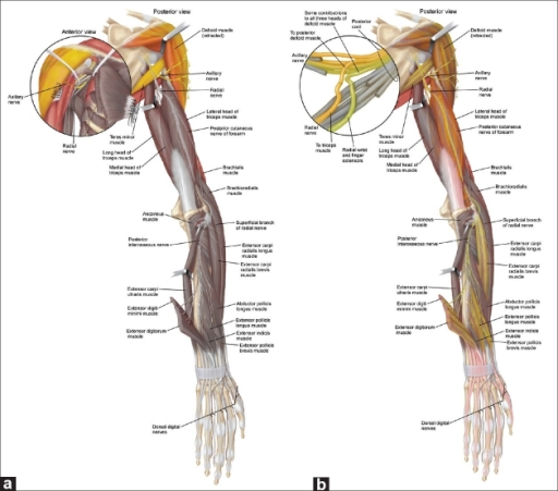 The Axillary To Radial Nerve Transfer Strategy A Giv Open I