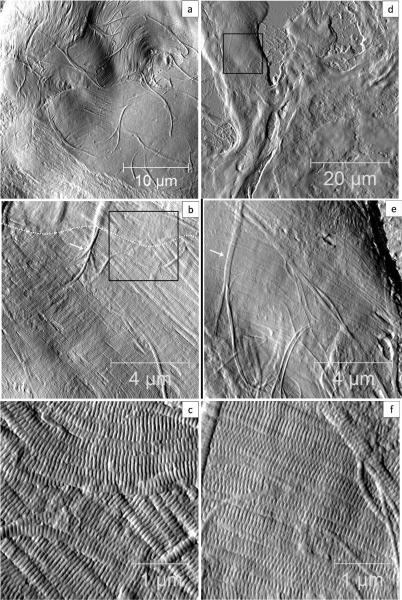 AFM deflection images of dermis contain domains of collagen fibril bundles. Panel a and b are representative images from a sham dermis sample; panel c and d are images from an OVX dermis sample. Panel a captures potentially two fibril bundles (the rough area at the bottom of the scan is coursed by microtome sectioning). Panel b shows one fibril bundle on top of another (The boundary is marked by the white dashed line), notice that a few fibrils that are underneath one bundle are on the surface of another bundle.Panel c is the region marked by the black box in panel b. Panel e and f capture the only region with collagen fibrils found in the 50 micron area of OVX dermis (panel d).