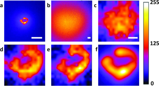 (a) Direct widefield image of the fluorescent structure without tissue phantoms.(b) Direct widefield image of the fluorescent structure surrounded by 2 mm thick tissue phantoms (μs  = 7.63 /mm, g factor = 0.9013). (c) Image acquired with the first round of ultrasound pulse guided DOPC. (d) Image acquired with five iterations. (e) Image acquired with nine iterations. (f) 2D convolution with a 2D Gaussian function (FWHM: 12 microns). Scalebar: a, b: 100 microns, c: 20 microns. Colorbar in arbitrary units.