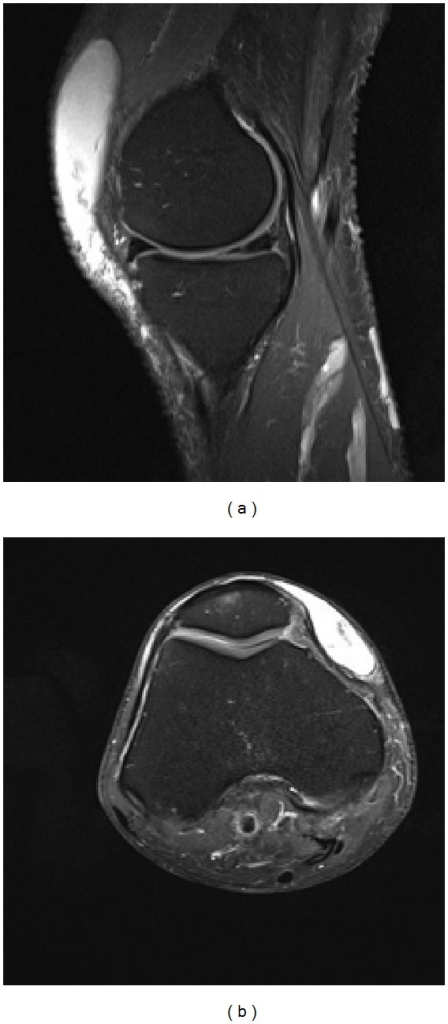 Magnetic resonance images (T2-weighted) highlighting the prepatellar collection of fluid in sagittal (a) and axial (b) sections.