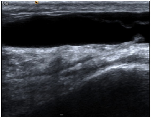 Ultrasound appearance of fluid collection lying anterior to extensor mechanism of right knee.