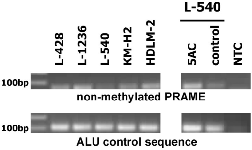 PRAME methylation status of HL cell lines.Presented is a representative methylation specific PCR with bisulfite treated DNA from HL cell lines. In the upper panel a PCR with specific primers for the non-methylated PRAME gene is presented. In the lower panel a PCR with specific primers for the ALU repetitive sequence is shown. The ALU sequence was used as control. The PCR was also performed with DNA from L-540 cells, which were treated with medium (control) and 5 µM 5AC for two weeks. Reactions without DNA template (NTC) were used as controls.