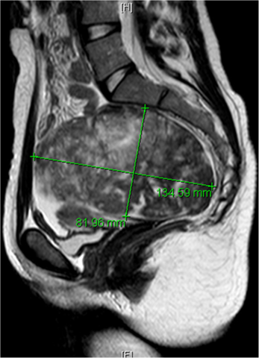 Magnetic resonance imaging scan of the pelvis demonstrating a large heterogeneous mass arising from the left ovary, extending from the sacrum to the abdominal rectus muscle.