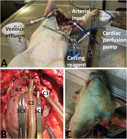 Creating a vascular circuit in the head and neck for corrosion casting. (A) Blue casting reagent is retrieved from a reservoir by a cardiac perfusion pump and introduced into the arterial circulation via an aortic cannula. After circulating through the head and neck, the venous effluent is collected via a cannula in the superior vena cava. White arrows indicate direction of fluid flow. (B) A Satinsky clamp (SC1) is placed on the ascending aorta (AA) proximal to the bicarotid trunk (BCT). Another is placed distal to the bicarotid trunk on the descending aorta (not seen). A third Satinsky clamp (SC3) is placed on the superior vena cava (SVC) just proximal to the right atrium (RA). One cannula (C1) is placed in the bicarotid trunk (BCT) and another (C2) is placed in the superior vena cava (SVC). (C) A change in skin colour from pink to blue denotes complete perfusion of casting reagent.