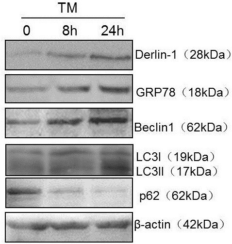 Detection of Derlin-1 expression in NCI-N446 cells after TM treatment using western blot. GRP78 expression was induced by ER stress. Expression of Derlin-1, autophagy gene Beclin 1 and LC3II increased under ER stress, but p62 expression decreased, indicating the induction of autophagy.