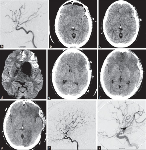 Tracing the month long course of life-threatening vasculitis after aneurysm clipping in a 33-year-old woman. Initial clipping. (a) After coil embolization for rupture of a right internal carotid artery (ICA) aneurysm, an unruptured left posterior communicating artery (PComA) aneurysm was incidentally detected and then treated by clipping; this intraoperative angiogram demonstrated flow in PComA and fetal posterior cerebral artery (PCA) after clipping and no residual aneurysm filling. (b) Postoperative CT confirms clipping was successful. Readmission and reclipping. Eleven days later (day 1), patient returns to the emergency department where head CT (c) and MRI (d) showed acute infarction in the orbitofrontal and left frontal opercular cortical regions. CTs during hospital days 11–22. Day 11 (e), progressive mass effect and infarction; day 12 (f), after surgical decompression, evolution of new bifrontal infarctions and day 16 (g) demonstrating new left PCA infarct with worsening of bilateral frontal infarctions. Day 17 (h), repeat angiogram shows high-grade stenosis and near-complete occlusion of the left PCA at the P1-2 junction; mild short segment stenosis involves several cortical branch vessels of left MCA. Day 22 (i), intraoperative angiogram after nickel-containing clip removal was replaced with titanium clip