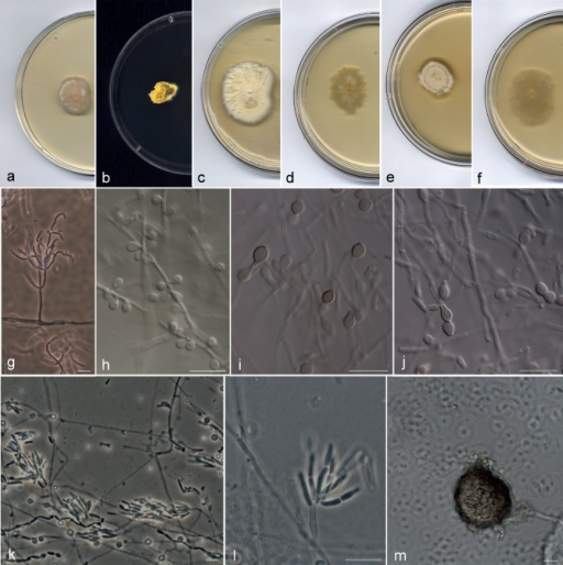 Arthrographis kalrae. a–c. Colonies on PDA after 21 d at 25 °C; d–f. colonies on MEA 2 % at 25 °C after 21 d; g. branched conidiophores; h. lateral sessile conidia; i, j. pigmented chlamydospores and hyaline arthroconidia; k, l. whorls of short arthroconidial chains; m. sterile ascoma (a, d. CBS 693.77; b, e. UTHSC 09-141; c, f–h, k–m. UTHSC 05-17; i, j. UTHSC 11-1256). — Scale bars = 10 μm.