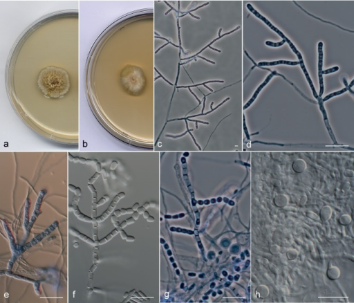 Arthrographis chlamydospora UTHSC 06-1053. a, b. Colonies on PDA and MEA 2 %, respectively, after 21 d at 25 °C; c, d. branched conidiophores; e, f. conidiogenous hyphae fragmenting schizolytically; g. cylindrical and doliiform arthroconidia; h. chlamydospores. — Scale bars = 10 μm.