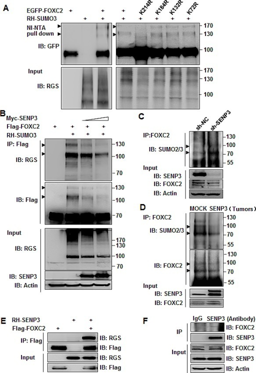 SENP3 can de-conjugate SUMO2/3 from the EMT-inducing TF FOXC2(A) SUMO3 conjugates of FOXC2, determined by NI-NTA pull down assay in HEK293T cells co-transfected with EGFP-FOXC2 wild-type/mutants and RH-SUMO3. (B) SUMO3 conjugates of FOXC2, determined by Flag immunoprecipitation in HEK293T cells co-transfected with Flag-FOXC2, RH-SUMO3 and SENP3. (C,D) Endogenous SUMO2/3 conjugates of endogenous FOXC2, determined by co-IP in the lysates of HEK293T-sh-SENP3 stable cells (C) and gastric cancers (D). Tumor tissues were collected from two representative orthotopic cancer mice of each group. Arrowheads indicated SUMO3-conjugated FOXC2 in A, B, C and D. (E, F) SENP3-FOXC2 interaction determined exogenously in HEK293T cells co-transfected with two plasmids (E), and endogenously in MGC803 cells (F).