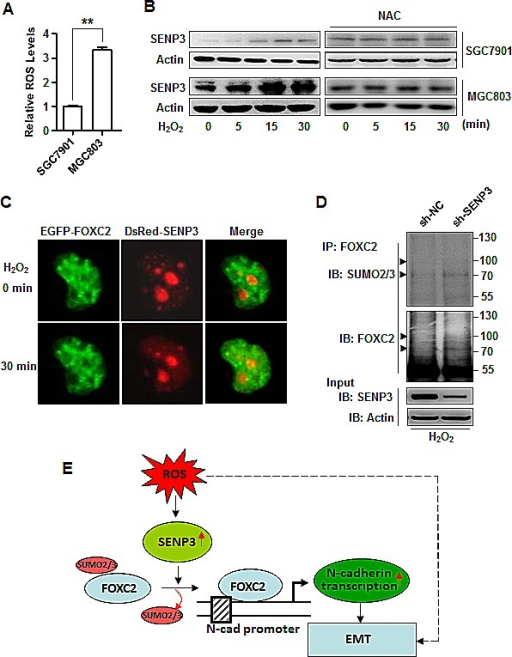SENP3 mediates ROS-induced FOXC2 de-SUMOylation(A) ROS level determined by DCFH-DA staining and flow cytometric analysis in SGC7901 and MGC803 cells. The results were from three independent experiments. **: P<0.01. (B) The increase of SENP3 protein in SGC7901 and MGC803 cells exposed to 200μM H202 in the presence or absence of 5 mM NAC for the indicated time. (C) Live cell imaging of MGC803 cells co-transfected with EGFP-FOXC2 and DsRed-SENP3, and exposed to H2O2 (200 μM) for 30 minutes. (D) Endogenous SUMO2/3 conjugates of endogenous FOXC2 determined by co-IP in the lysates of MGC803-sh-NC and MGC803-sh-SENP3 cells exposed to 200 μM H2O2 for 30 min. (E) A model illustrating the molecular mechanism proposed by the present study for the role of SENP3 in the EMT.