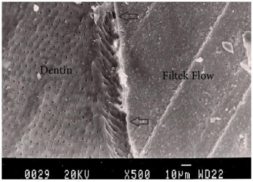 Representative SEM photomicrograph of a Group 4 specimen (Filtek Flow + Filtek Z250, light-cured together). The arrows indicate microgap formation between Filtek Flow and dentin.