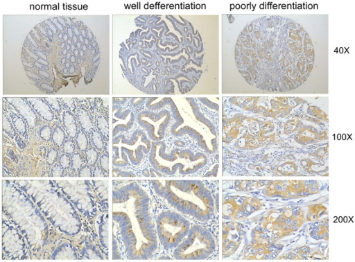 LIN28B is significantly overexpressed in colon tumour tissues.IHC showed that LIN28B was markedly upregulated in tumour tissues compared with the normal mucosa, which demonstrated very little LIN28B expression. Representative graphs are presented.
