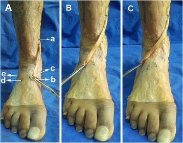 "Procedures used for measurement. (A) We classified the point of the upper edge of the second incision as point ""a,"" which can be changed according to different height levels for transfer. The distal tip of the tendon was classified as point ""b."" The midpoints of the intermediate cuneiform, the lateral cuneiform, and the cuboid were defined as points ""c,"" ""d,"" and ""e,"" respectively. PTT was re-routed to reach the midpoints of the (A) intermediate cuneiform, (B) the lateral cuneiform, and (C) the cuboid by applying tension to some extent. During this procedure, the limb was kept in a neutral position."