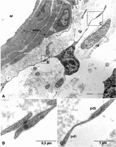 Electron micrograph showing the close relationship between arteriole and telocytes. (A) Telocyte covering collagen and elastic fibres present in the tunica adventitia. (B and C) Higher magnification of boxed areas in A. (B) Gap junction connecting the processes of two telopodes. (C) Two dilatations, podoms (pd1 and pd2) which accommodate rough endoplasmic reticulum. ar: arteriole; smcs: smooth muscle cells; tp: telopodes; nt: nervous trunk; TC: telocyte; pd: podom.