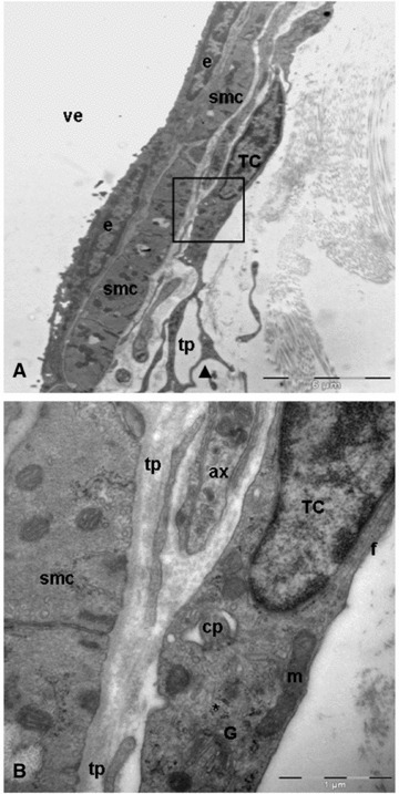 Transmission electron microscopy images of telocyte in close apposition to wall of venule. (A) A typical example of telocyte: long, thin and moniliform processes with dichotomous pattern (arrowhead) of branching. Black square illustrating a higher magnification of telocyte from A. (B) The perinuclear cytoplasm contains well-developed Golgi apparatus (G), mitochondria (m), numerous polyribosomes (asterisk) and intermediate filaments (f). Note the deep invagination (cilium-pit) corresponding to primary cilium. smc: smooth muscle cells; tp: telopodes; ax: axon; TC: telocyte; e: endothelial cell; cp: cilium-pit; pd: podom; ve: venule.