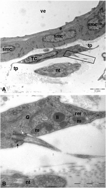 Duodenal venule. (A) Telocyte located in parallel between the cells of the vessel wall and a nerve trunk. Note as the cytoplasm of telocyte establishes interactions with vascular smooth muscle. Black rectangular illustrating the primary cilium. (B) Longitudinally section. Some telocytes exhibit a primary cilium. The basal body resides at the base of the cilium-pit and is associated with its membrane via the distal appendages (white arrow). Below the distal appendages are the subdistal appendages (black arrow). smc: smooth muscle cells; tp: telopodes; nt: nervous trunk; TC: telocyte; e: endothelial cell; ve: venule; G: golgi apparatus; m: mitochondria; rer: rough endoplasmic reticulum; li: lipid drop.