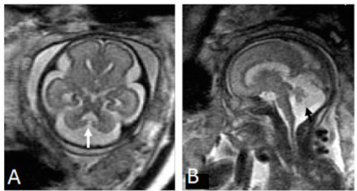 Dandy-Walker malformationPanel A is an axial image demonstrating a direct communication between the fourth ventricle and cisterna magna while Panel B is a sagittal image demonstrating an enlarged posterior fossa, findings consistent with Dandy-Walker malformation. Image reprinted without changes from Sohn, et al. under the creative commons license.