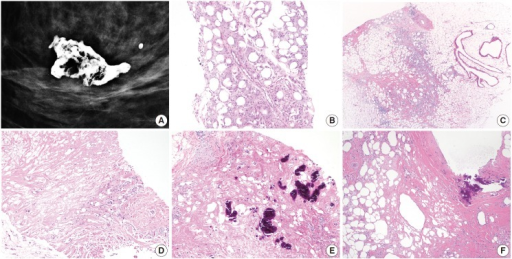 Mammographic and microscopic features of fat necrosis in core biopsy samples. (A) Mammography shows a calcified lipid cyst, a characteristic feature of fat necrosis. (B) Core biopsy shows foamy histiocytes in adipose tissue. (C) Chronic inflammation is present and histiocyte-lined cysts are evident (right). (D) Necrotic adipocytes, chronic inflammation, and fibrosis are seen. (E, F) Fat necrosis is seen in stereotactic core biopsies obtained due to calcifications. (E) Calcifications formed within necrotic fat. (F) Calcified fibrous wall of a lipid cyst.