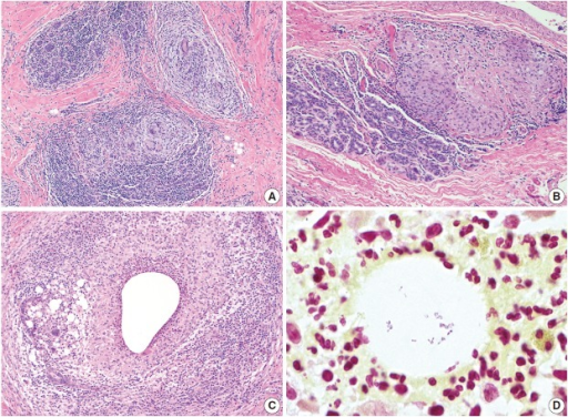 Granulomatous lobular mastitis. (A, B) Non-necrotizing granulomas are centered within lobules. Granulomas contain Langhans giant cells, and are associated with lymphocytes and plasma cells. (C) Cystic neutrophilic granulomatous mastitis showing neutrophil-lined cysts within granulomas. (D) Gram-positive coryneform bacilli are present within the cysts.
