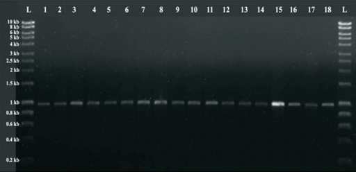 PCR amplified product of blaPER-1. L: Hyper ladder I (Bioline; UK); 1-18: 920 bp PCR amplified product of blaPER-1.