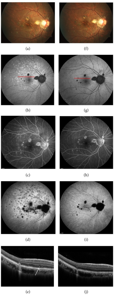 Fundus photography (a, f), SW-FAF (b, g), FA (c, h), ICGA (d, i), and SD-OCT (e, j) of the right eye of a 24-year-old female at the initial visit and 5 weeks later. At the initial visit, her BCVA was 0.2. (a) There were scattered yellowish spots in the upper posterior pole in addition to the yellow-gray PIC lesions. (b) Diffuse hyperautofluorescent areas were shown on SW-FAF, which tended to emerge in the macula and around the optic disc. Additionally, the hypoautofluorescent PIC lesions were surrounded by hyperautofluorescent edge. (c) FA revealed patches of hyperfluorescence, which was especially obvious in late phase and the extent was smaller than it was on SW-FAF and ICGA.The PIC lesions showed hyperfluorescent spots with slight leakage. (d) Hypocyanescent spots were indicated in the late phase of ICGA. (e) The red line (crossing a PIC lesion and hyperautofluorescent areas on SW-FAF) shown on SD-OCT was dome-shaped high reflective materials (arrow), with underlying disrupted EZ. Additionally, an active lesion (stage III) was detected. Five weeks later, the MEWDS lesions faded completely on fundus photography (f), SW-FAF (g), FA (h), and ICGA (i). Meanwhile, the dome-shaped high reflective materials on SDOCT disappeared and disruption of EZ near-completely recovered (j). The hyperautofluorescent margin of the PIC lesion faded on SW-FAF (g). The PIC lesion regressed on SD-OCT (j). Her BCVA was improved to 0.32.