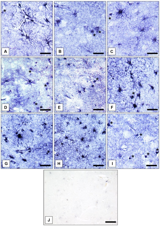 Immunolocalization of GS in cortical and subcortical human brain glial cells in MDD, BD, and controls. (A) GS-immunoreactive ACs and OLs (asterisk) in the pACC (control case). Bar = 20 μm. (B) GS-immunoreactive ACs and OLs (asterisks) in the pACC (MDD subject). Bar = 20 μm. (C) GS-immunoreactive ACs and OLs (asterisk) in the pACC (BD subject). Bar = 20 μm. (D) GS-immunoreactive ACs and OLs (asterisks) in the sACC (control case). Bar = 20 μm.(E) GS-expressing ACs and OLs (asterisk) in the sACC (MDD subject). Bar = 20 μm.(F) GS-expressing ACs and OLs (asterisk) in the DLPFC (BD subject). Bar = 20 μm. (G) GS-immunopositive ACs in the AiC (control case). Bar = 20 μm. (H) GS-expressing ACs in the NAc (control case). Bar = 24 μm. (I) GS-immunoreactive OLs (asterisks) in the pACC (control case). Bar = 20 μm. (J) Specificity control reaction. After preabsorption of the primary antiserum with recombinant GS protein no specific immunostaining is visible. Bar = 30 μm.