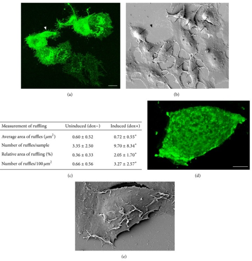 GFP-HAS3 expression induces plasma membrane ruffling. Confocal 3D projection of transiently transfected MCF-7 cells imaged by CLSM (a) and the corresponding area by SEM (b). Arrows in (b) indicate GFP-HAS3-positive cells with plasma membrane ruffling, while negative cells (asterisks) have smoother dorsal surface. Arrowheads in (a) and (b) indicate a cell that was lost during SEM processing. Stable, inducible transfections were utilized to quantify the dorsal ruffling of MCF-7 cells, which was significantly increased upon induction of GFP-HAS3. Significant difference (P < 0.05) in quantified parameters of ruffling is indicated by an asterisk (*) in table (c). N = 20 in both groups. A GFP-HAS3-positive cell treated with hyaluronidase before fixation is shown with CLSM and SEM in (d) and (e), respectively. Scale bars 10 μm in (a) and 5 μm in (d).