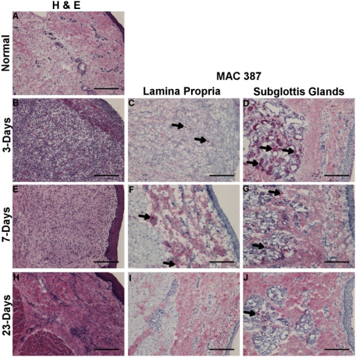 H&E staining 3-days (B), 7-days (E) and 23-days (H) post surgical injury and uninjured control (A). Labeling of inflammatory cells with MAC387 3-days (C-D), 7-days (F-G), and 23-days (I-J) post LPS injury as indicated by Vector Red staining. Arrow denotes representative positive stained cells. Column 1 magnification 10x; 100μm scale bar.