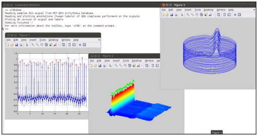 The wfdb toolbox for matlaboctave integrates physionet open i the wfdb toolbox for matlaboctave integrates physionets software and databases with the high precision ccuart Gallery