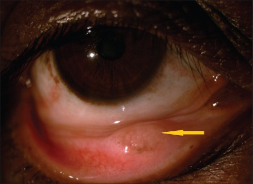 Granulomatous lesion in the lower palpebral conjunctiva