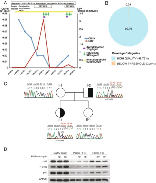 Identification of a disease-causing mutation in. Disease severity and complications increased over time with two severe episodes of EBV-associated lymphoproliferation within one year (a). The patient was assessed using a targeted, next-generation sequencing-based gene panel with high on-target coverage (b). A heterozygous mutation in the RHD domain of the NFKB1 gene was identified, leading to a frameshift and a subsequent stop codon (c.491delG; p.G165A*31). The patient's father was found to be a carrier of the disease (c) and shows an aberrant B cell immunophenotype despite his mild clinical manifestation (Table 1). The mutation leads to reduced phosphorylation of p105 upon stimulation in both index patient (II-1) and father (I-2), resulting in decreased protein levels of p50 (d)