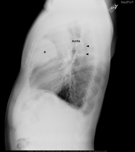 Chest x-ray shows a large lobulated anterior mediastinal mass (asterisk).  The aorta - both arch and descending thoracic portions - are separate from the mass.