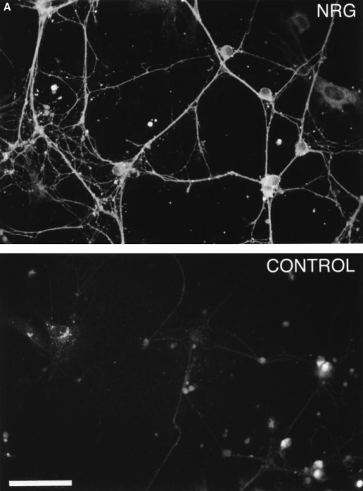 "DRG neurons express multiple neuregulin isoforms. (A) Neurons isolated from E15 DRGs were cultured for 3 wk as described, fixed, and stained with an antibody that recognizes a peptide within the COOH terminus of the neuregulin ""a"" form. Immunoreactive cells were recognized with Cy3-conjugated secondary antibodies and epifluorescence. Both processes and soma stain intensely for neuregulin. (B) Western blot of cytosolic and membrane fractions from DRG neurons. Neurons isolated from DRGs were  cultured for 3 wk and lysed in hypotonic buffer, and membrane and cytosolic fractions were prepared as detailed in Materials and Methods. Proteins were solubilized in SDS-DTT–containing buffer and resolved on 4–15% gradient gels, and the resulting blots were probed  with the antineuregulin antibody described above. Bar, 50 μm."