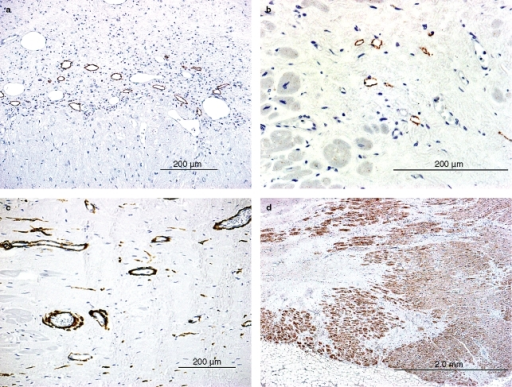 Immunohistochemistry in Stages VI (a) and VII (b–d)a, The upper half of the figure shows the lesion with fibrosis (Stage VI), in which D2-40+ lymphatics are scattered adjacent to the viable cardiomyocytes (the lower half of the figure). Their lumens are dilated. b, In Stage VII, showing scar formation, D2-40+ lymphatics are scattered in the periphery of the lesion. c, In the scar, muscular blood vessels immunopositive for smooth muscle actin are scattered. d, Cardiomyocytes around the scar are positive for vascular endothelial growth factor-C.