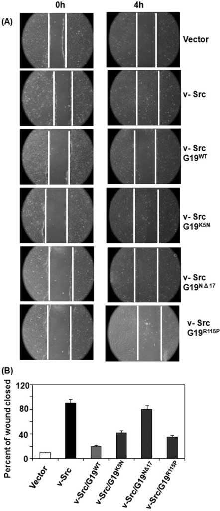 Effect of GRIM-19 on v-Src-dependent cell motility(A) Injury-induced migration of cells into the wounded area was monitored. Magnification: 100×. White line indicates the edge of injured site. Note the rapid migration of v-Src-expressing cells, but not the controls, into the wounded area. The wildtype and mutant GRIM-19 proteins were expressed using lentiviral vectors and their impact on cell motility was measured. Note suppression of v-Src-induced cell motility in the presence of wildtype GRIM-19. The mutant proteins have lost such suppressive activity to varying degrees. (B) A quantified view of the inhibitory effects of GRIM-19 on cell motility. Distance migrated from the edge of the monolayer to the center of the denuded area 4h after the induction of injury was calculated from a number of independent samples (n=8) and plotted.