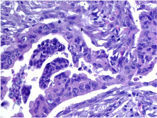 Pathology from one Whipple specimen showed ductal adenocarcinoma, moderately differentiated. Irregularly shaped malignant glands infiltrated the desmoplastic stroma. Marked nuclear atypia was observed (Hematoxylin and Eosin 40× per High Power Field).