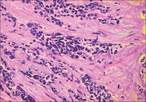 A 40× magnification H&E stain of case 4 at this presentation shows transition of the adenocarcinoma to a small cell neuroendocrine carcinoma.
