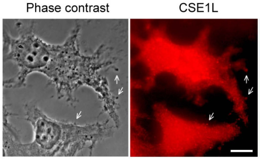 CSE1L staining in vesicles surrounding the outside of cell membrane. The distribution of CSE1L in MCF-7 cells was analyzed by immunohistochemistry with anti-CSE1L antibody. Note the vesicle-like staining of CSE1L in cell protrusions and positive staining of CSE1L in vesicles surrounding the outside of the cell membrane. The scale bar = 30 μm. The photo is derived from a figure in reference 63 [63].
