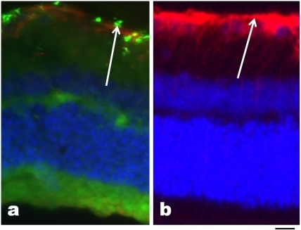 Localization of magnetic nanoparticles at 1 week.At 1 week after IVT injection, immunofluorescence was used to localize 50 nm particles (green in a) and 4 µm particles (red in b) as shown by white arrows. In both cases, retinas were counterstained with GFAP and DAPI (nuclei, blue). At 1 week, both sizes of magnetic particles were detectable in the ganglion cell layer (arrows). Scale bar, 50 µm.