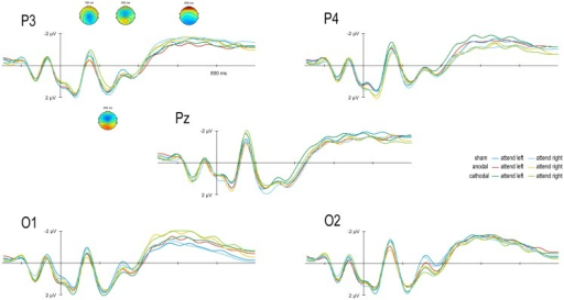 Transcranial direct current stimulation effect on event-related potentials (ERPs): Grand average scalp-recorded ERPs are given for anodal, cathodal, and sham conditions for stimuli attended in the left and right hemifield. ERPs are averaged over 12 subjects for the posterior electrodes P3, P4, Pz, O1, and O2. ERP topographies of grand averages across all conditions are given separately for the N2 (150 ms), P2 (230 ms), N3 (300 ms), and SPCN (1650 ms).