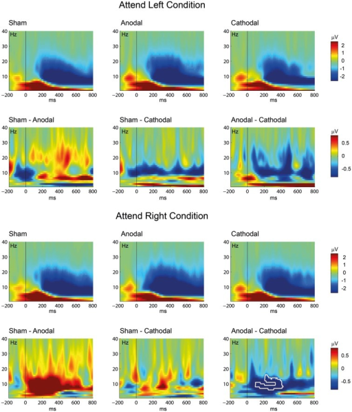 Transcranial direct current stimulation effect on oscillatory brain activity: Event-related spectral perturbation (ERSP) time-frequency plots are given for the sham, anodal, and cathodal conditions. The figure shows the results separately for the attend left (above) and the attend right (below) conditions. Differences between the conditions were computed by subtracting the active ERSPs (anodal, cathodal) from the sham ERSP (left and middle row) or by subtracting the cathodal ERSP from the anodal ERSP (right row). The white contour indicates significant differences between the conditions (P < 0.05, corrected for multiple comparisons). Note the different scaling for the ERSP plots (sham, anodal, and cathodal condition; upper rows) and the difference plots (lower rows).