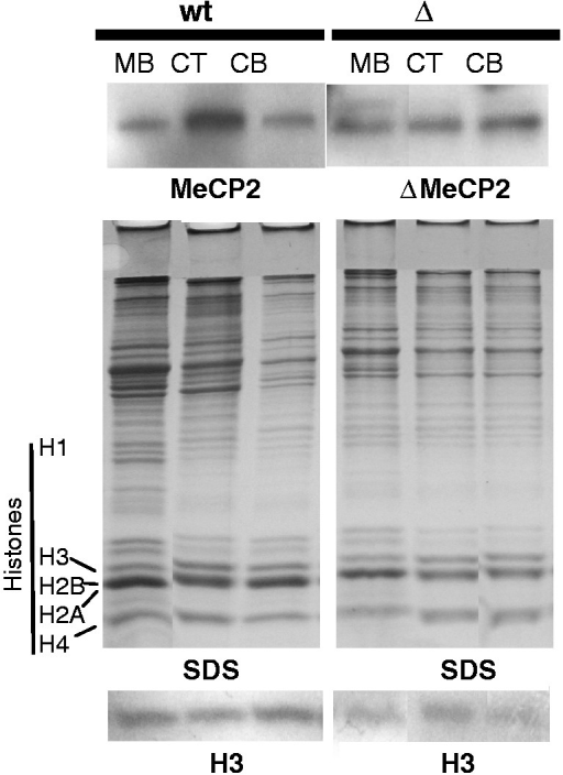 Distribution of wtMeCP2 and ΔMeCP2 in different sections of the brain. The upper and lower part show a western blot analysis using an MeCP2 and histone H3 antibody, respectively, of the SDS–PAGE analysis of the nuclear protein composition shown in the middle. CB: cerebellum; CT: cortex and MB: midbrain.