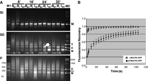 Nuclear size, histone H1 composition and chromatin accessibility of wt and Mecp2tm1.1Jae mutant mice (Δ). (A) Agarose gel electrophoresis of the DNA fragments obtained by micrococcal nuclease time course digestions of mouse brain and liver at the times indicated on top of the gel. M1 and M2 are the GeneRuler 50 bp and GeneRuler 1 kb DNA ladder markers (Fermentas), respectively. The arrow points to the higher intensity of the band corresponding to the di-nucleosome in the SE fraction of the Mecp2tm1.1Jae mutant mice nuclei at high times of nuclease digestion. Bwt, BΔ and Lwt same as in Figure 4F. D: di-nucleosome; M: mono-nucleosome; T: tri-nucleosome. The numbers under the lanes shown in SE indicate the ratios D: M as determined by densitometry. (B) FRAP of wtMeCP2-GFP and ΔMeCP2-GFP.